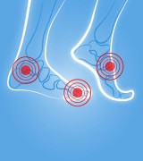 OSWE Artrose voorbeeld - OSWE