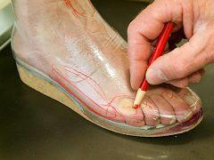 orthopedische schoenen aanmeten - OSWE